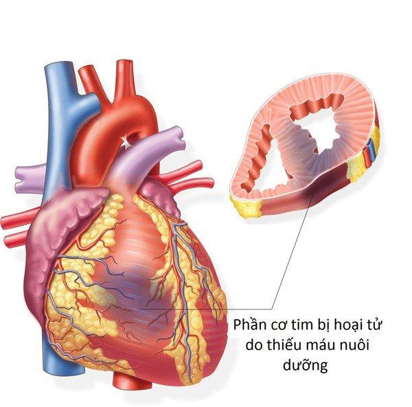 Vùng cơ tim bị tổn thương do nhồi máu cơ tim
